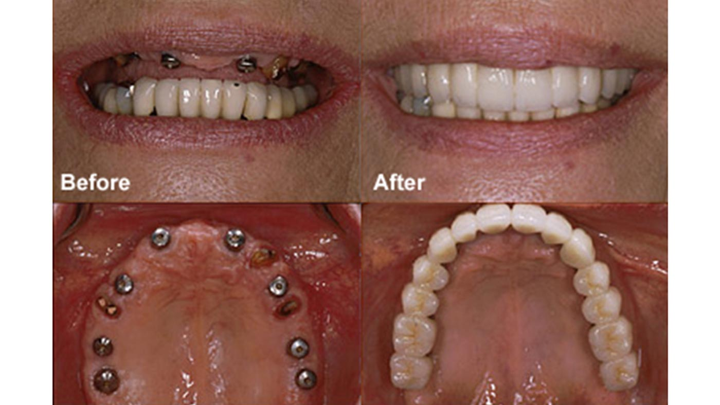 Permalink to How Much Does A Single Tooth Denture Cost